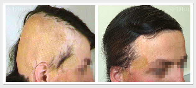 Before and after hair transplant — 3500 grafts