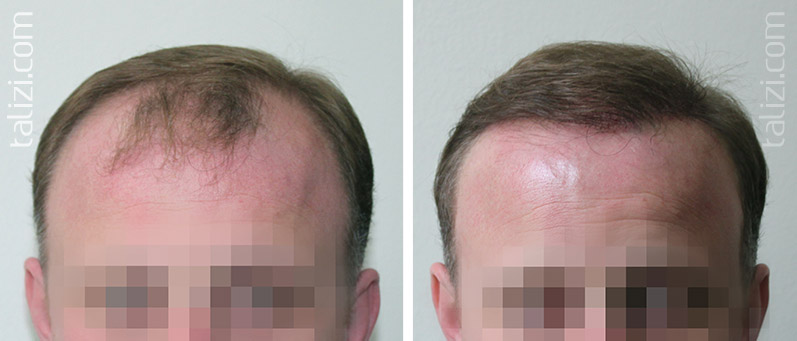 Photo: before and immediately after transplant of 2500 long hair grafts