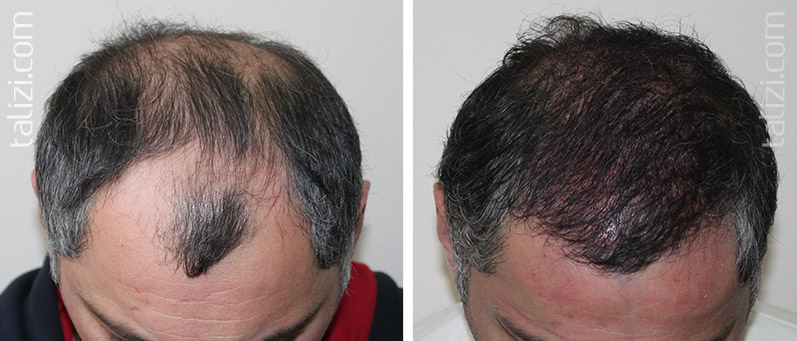 Photo: before and immediately after transplant of 3000 long hair grafts