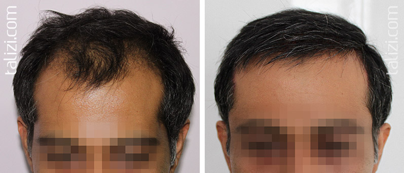Photo: Before and after transplant of 2500 grafts using Long Hair Transplant
