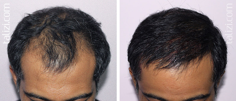 Photo: Before and after transplant of 2600 grafts using Long Hair Transplant