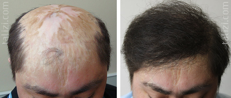 Photo: Before and after transplant of 3000 grafts using Long Hair Transplant